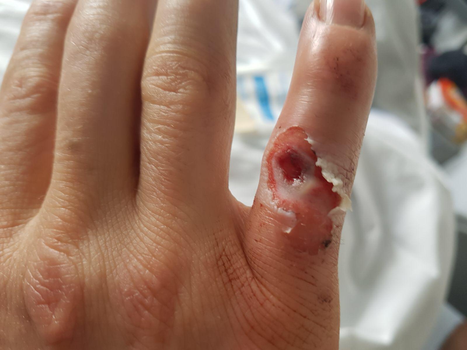 SBK 1000 – Schock für Kawasaki: Mathieu Gines verletzt